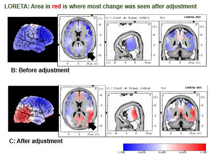 Where Is Life University >> Brain Activity Changes Post Chiropractic Adjustment Life